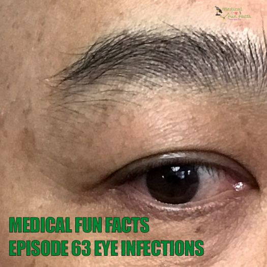 MFF Eye Infections Gary Lum